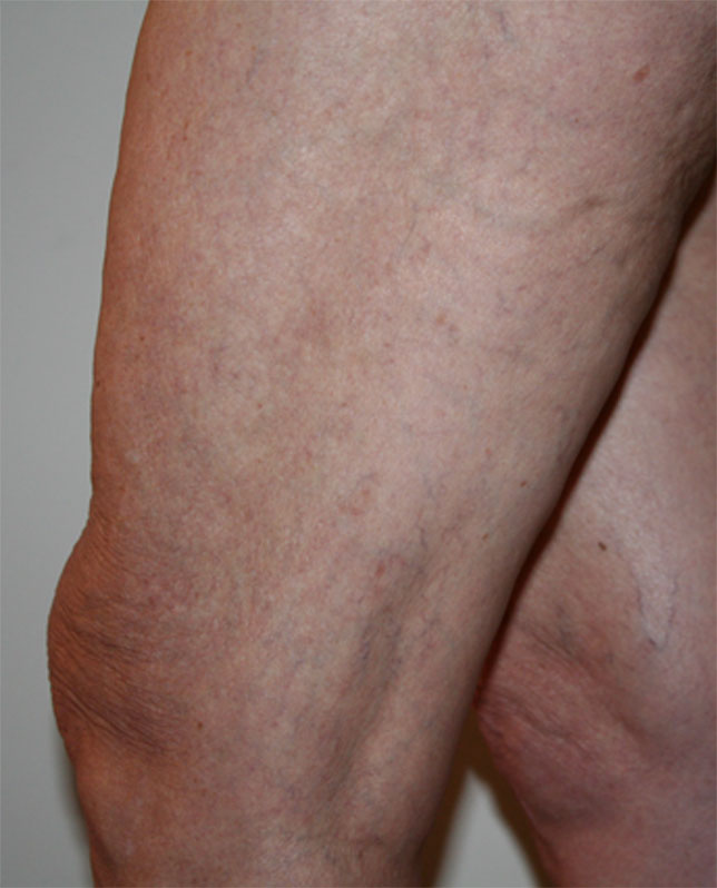 before and after varicose vein