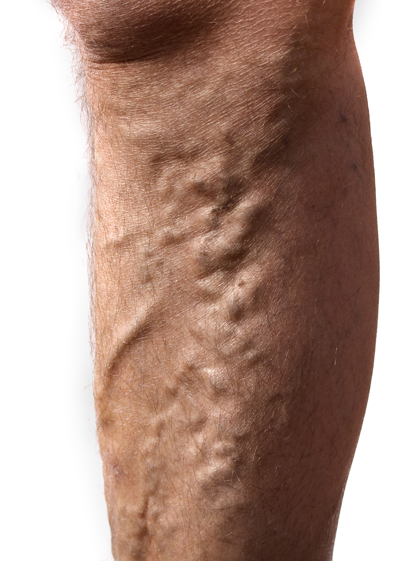Example of Varicose Veins