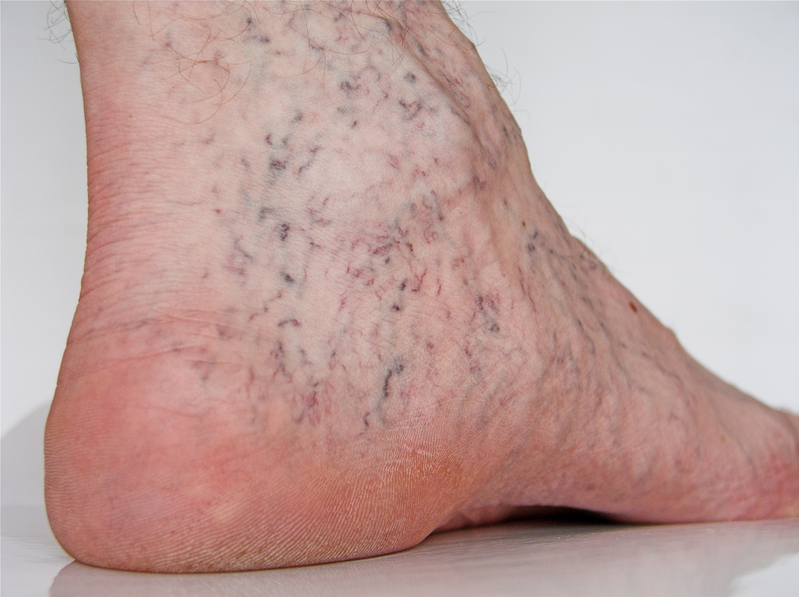 example of spider veins